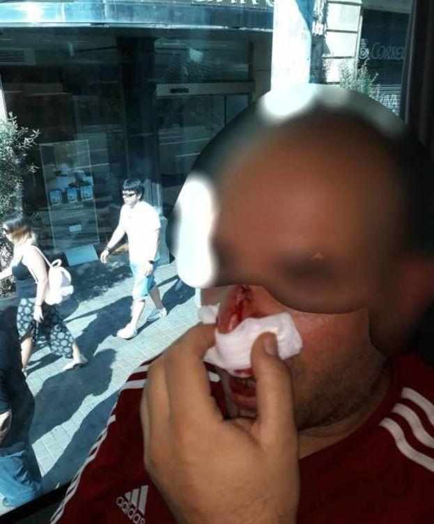 Foto: El manifestante agredido en Barcelona por miembros de los CDR. (Cedida)