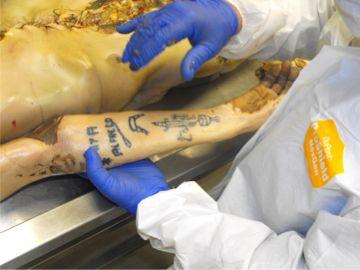Gracias al tratamiento especial, reaparecen tatuajes y marcas en la piel (D.B)